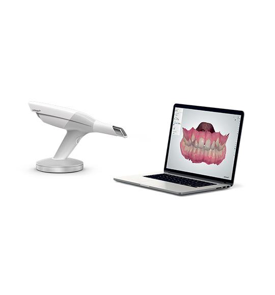 Dentist Brussels Equipement Empreinte numérique