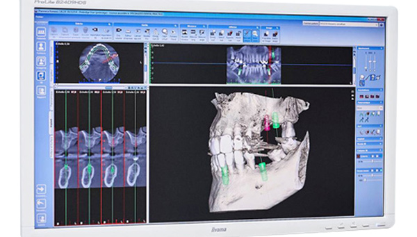 Dentist Brussels Electronic imaging